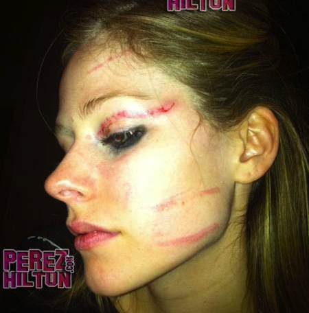 Avril Lavigne Bloodied, Bruised After Attack – Video